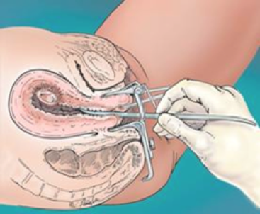 STEPS FOR VACUUM ASPIRATION – Early Abortion Training Workbook