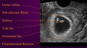 Image from Manual Vacuum Aspiration, a presentation by PRCH & ARHP, 2000